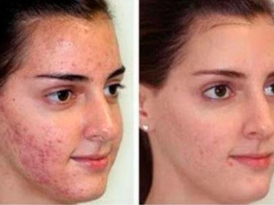 Severe Acne Scars Treatment Cosmédica - Dermo...